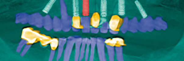 Implantatprothetische Therapie für die Sofortversorgung eines zahnlosen Oberkiefers