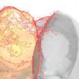 Intraoraler Scan eines Implantat-Systems mit dem 3M True Definition Scanner sowie die CAD/CAM basierte Prothetik