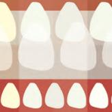 Frontzahnästhetik im CAD/CAM Verfahren: auch eine Frage der Farbwahl
