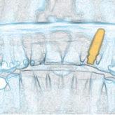 Die navigierte Implantologie im täglichen Praxisablauf