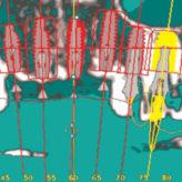 Computergesteuerte Implantologie: Digitaler Workflow erlaubt Ressourcenoptimierung im Behandlungsplan