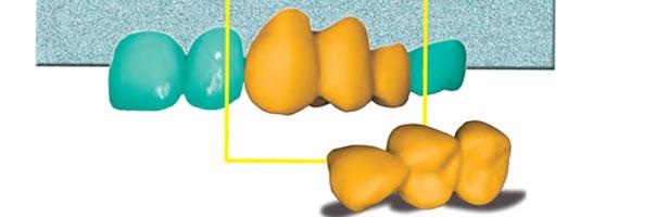 Die vollanatomische Keramikbrücke im Chairside-Verfahren (CEREC)