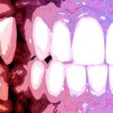Ästhetische Rekonstruktion nach parodontaler Destruktion
