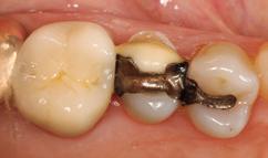 Abb. 1: Fraktur Zahn 25