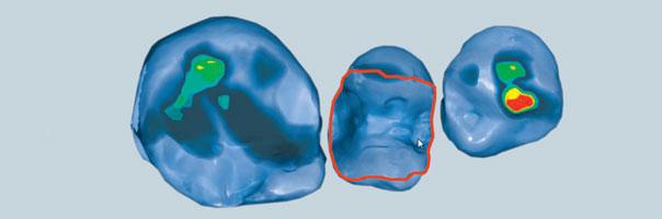 CAD/CAM: Inlay aus einem innovativen Werkstoff