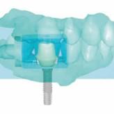 CAD/CAM in der Zahnarztpraxis – Fallbericht: CEREC Versorgung nach Implantation
