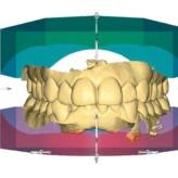 CEREC Orthosoftware – Die Kieferorthopädie wird digital