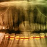 Das dreiflächige Seitenzahnveneer – neue Wege bei der individuellen Versorgung erosions- und funktionsbedingter Zahnschäden bei Bruxismuspatienten