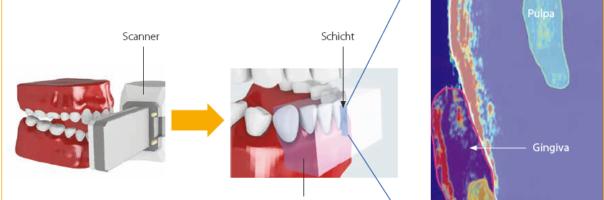 Expertengespräch: Hochfrequenter Ultraschall als Diagnosetool in der Zahnmedizin