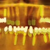 Provisorische Sofortversorgung und Historie über 16 Jahre Ankylos®-Implantate