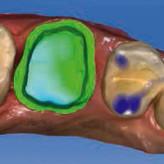 Sichere Befestigung von CAD/CAM-Materialien: Ein kompakter klinischer Leitfaden