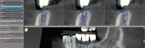 Sichere Implantation – coDiagnostiX aus Anwendersicht