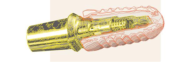 Tizio Implant – das innovative Hybridimplantat