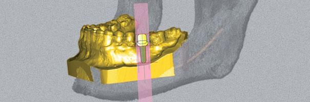 Von der dreidimensionalen Planung zur implantatprothetischen Sofortversorgung