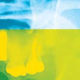 Unterschiede in der Durchführung und Abrechnung von konfektionierten und wurzelidentischen Replicate-Implantaten