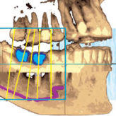 Implantation mit der CEREC Guide II
