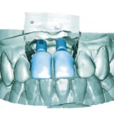 Implantieren im Frontzahnbereich – die Königsdisziplin in der Implantologie