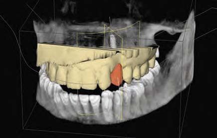 Kein Implantat ohne DVT?