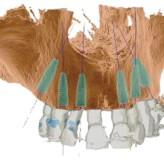 Sofortversorgung des kompletten Oberkiefers mit dem Straumann® Pro Arch Konzept