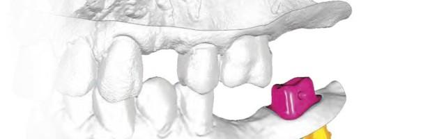 Minimalinvasive Implantatversorgung von Freiendsituationen im Unterkiefer mit wurzelidentischen Replicate-Implantaten