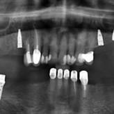 Mit Intraoralscannern zur digitalen Implantologie