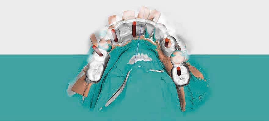 Oralchirurgie 2.0 | Interview mit Sebastian Beisel
