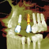 Die Volldigitale Restaurationsorientierte Implantatplanung mit dem neuen CEREC Guide3