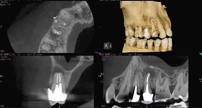 Praxisdigitalisierung mit Carestream Dental