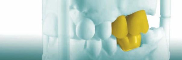 Schonend und effizient dank digitaler Implantationsplanung, navigierter Implantation und dem digitalen One Abutment – One Time Konzept