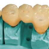Vollkeramische Implantatversorgung im Seitenzahnbereich