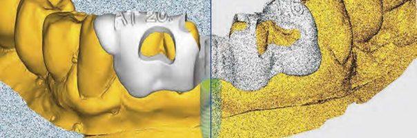 Einsatz einer Bohrschablone aus Zirkoniumdioxid