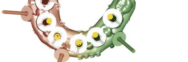 Teamarbeit in der Implantologie: über Grenzen hinweg