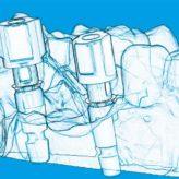Oberkiefer-Frontzahnversorgung mit angulierten Schraubenkanälen