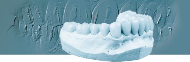 Vollständiger digitaler Workflow mit integriertem Dentalscan und nanokeramischer Hybrid-CAD/CAM-Disc