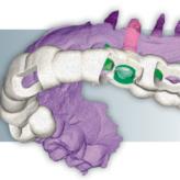 Straumann® PURE Ceramic Implantat und DWOS Synergy™ – eine Fallstudie