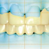 Vertikalerhöhung mittels CAD-CAM-gefertigten Langzeitprovisorien bei multiplen Aplasien im intraoral gescannten jugendlichen Gebiss
