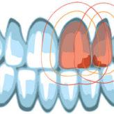 """Ein """"gut"""" für zwei Frontzahnkronen aus zirkonoxidverstärktem Lithiumsilikat"""