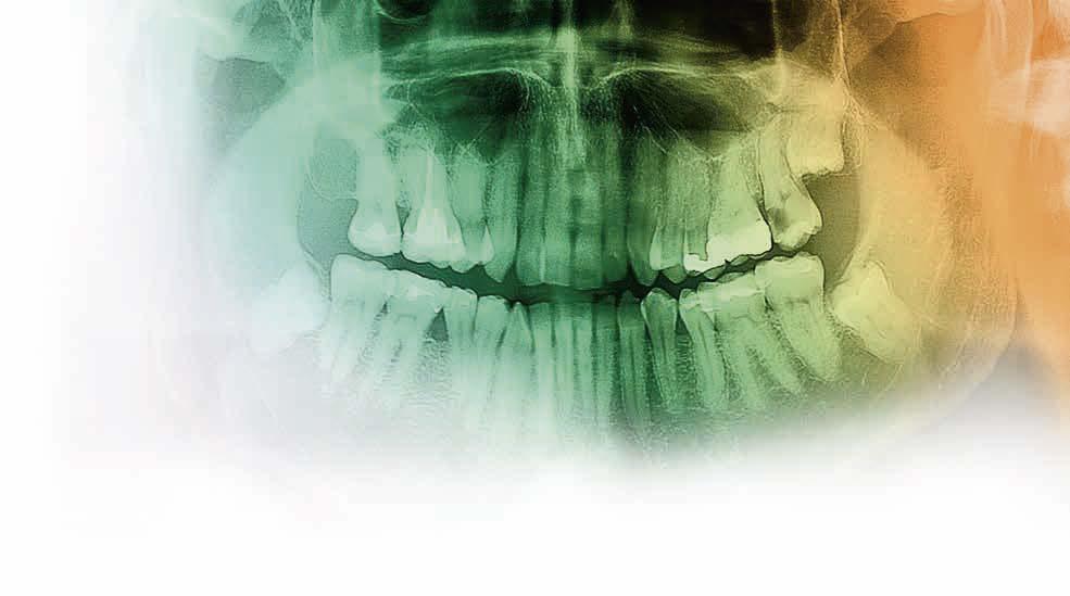 Digitale Volumentomographie im klinischen bewährten Endodontiekonzept bei komplexer Wurzelanatomie