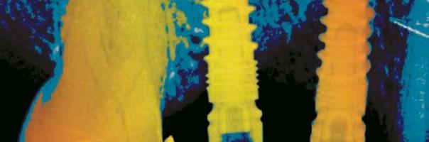 "MIMI®-Flapless II: Die (R)Evolution für ""Implantat-Profis"""
