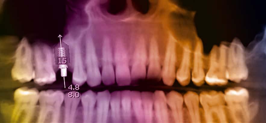 Minimalinvasive operative Verfahren – möglich durch 3D-Diagnostik
