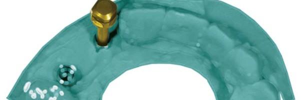 Prothetischer Ausgleich einer ungünstigen Implantatposition