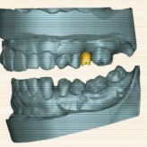 Rückwärts denken – digitaler Workflow mit Simplant und dem Astra Tech Implant System EV