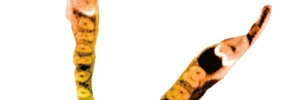SIDEXIS 4 – Sichere Diagnose, ganzheitliche Fallbewertung, moderne Kommunikation