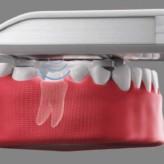 Ultraschall als Diagnosewerkzeug – das ist unsere Vision