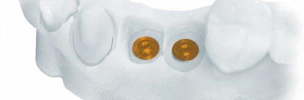 Unterschiedliche Möglichkeiten zum digitalen Workflow in der Implantatprothetik …