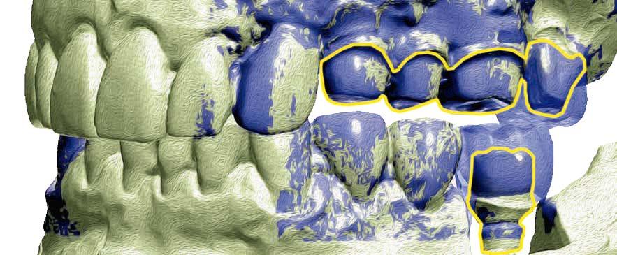 Versorgung eines Patienten mit implantat- und zahngetragenen Vollkeramikkronen und einer implantatgetragenen Brücke mit makroretentiven Keramikkronen
