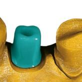 Versorgung mit implantat- und zahngestützten Einzelkronen im digitalen Workflow