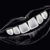 Visalys® Veneer Chairside – Perfektes Lächeln in nur einer Sitzung