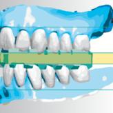Mit Digital Denture Professional gefertigte Totalprothesen: Ein Patientenbeispiel