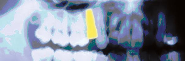 Der intraorale digitale Scan von Implantaten auf Basis des Gingivaformers als Ersatz der konventionellen Abformung
